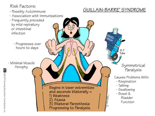Guillain-Barre_Syndrome.jpg-388.cf