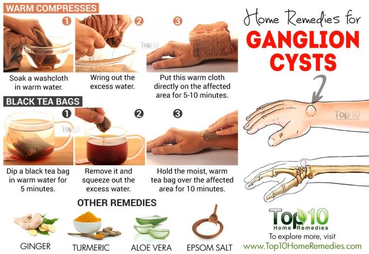 ganglion-cysts